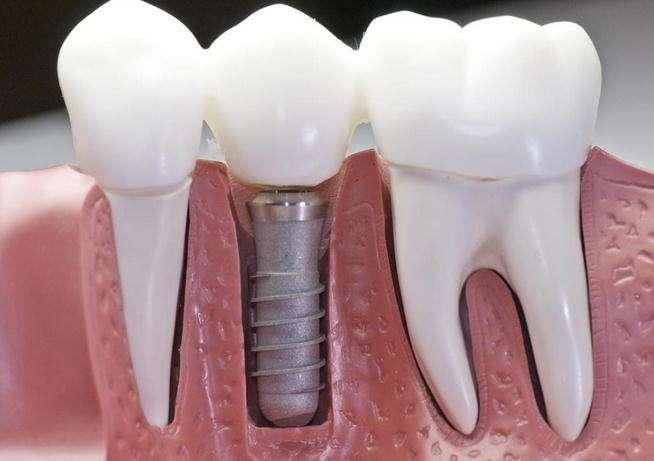 种植牙术后注意事项.jpg